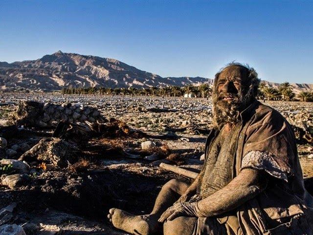 65 yıldır yıkanmayan adam, hijyenik olmayan bir çevrede, kötü bir yaşam sürmeye devam ediyor.